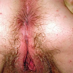 Very Hairy Asshole And Pussy Combo